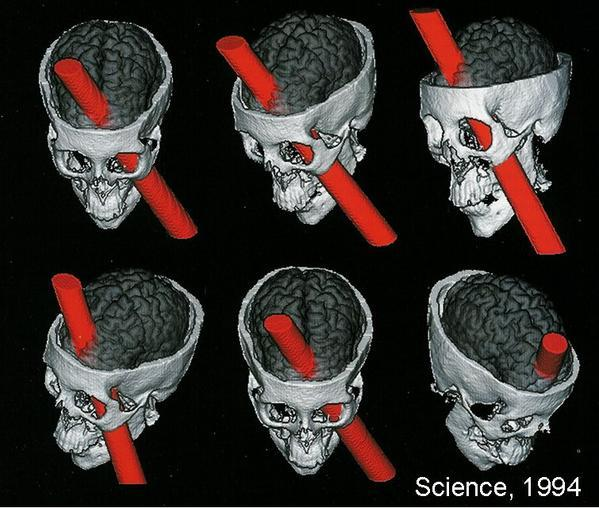phineas-gage-craneo